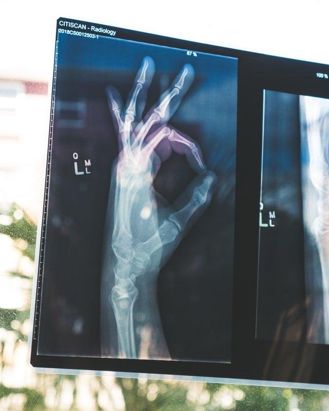 Il gesto di ok con la mano è mostrato attraverso una radiografia
